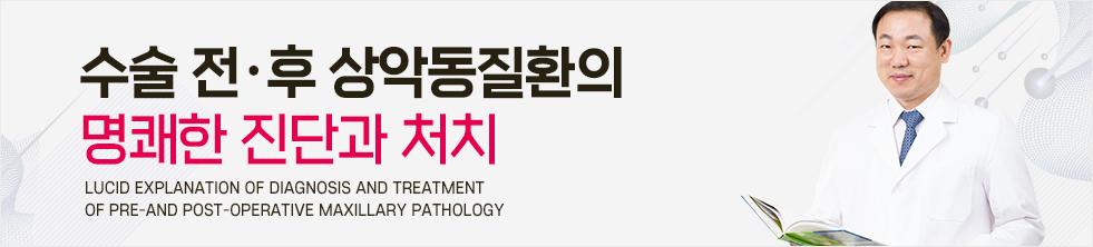 수술 전후 상악동질환의 명쾌한 진단과 처치